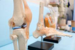 膝の問題に姿勢が関係しているって知ってた?